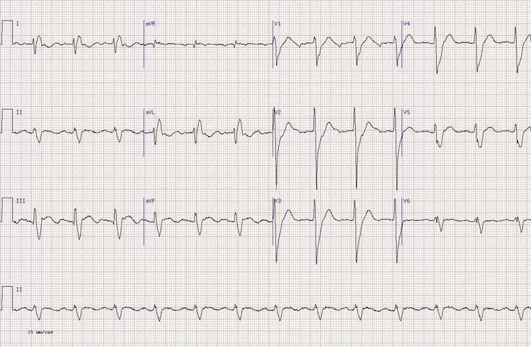 Кардиограмма сердца пример