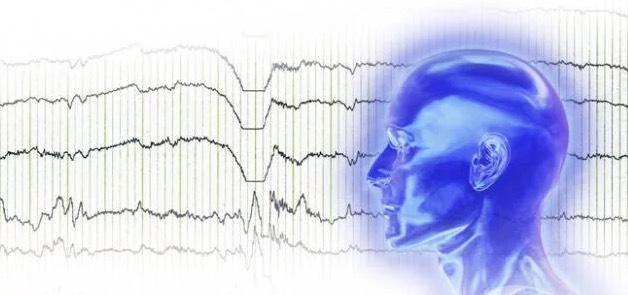Ээг головного мозга что показывает расшифровка
