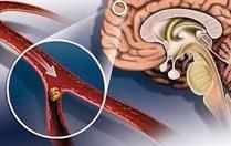 микро инсульт какие симптомы последствия