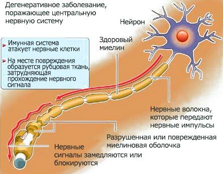 Рассеянный склероз как проходит заболевание