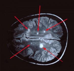 Рассеянный склероз что это такое и сколько с ним живут