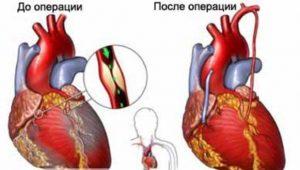 Коронарное шунтирование до и после операции