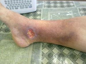 Трофическая язва на ноге лечение