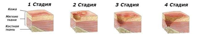 Трофическая язва на ноге стадии симптомы