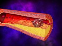 Как предотвратить отрыв тромба
