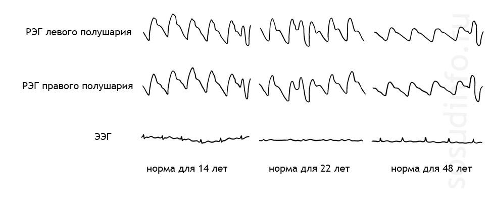 РЭГ головы нормальные показатели