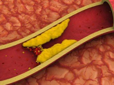 Сужение сосудов головы и шеи диагностика